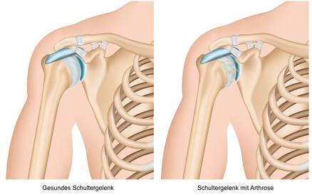 Arthrose in der Schulter