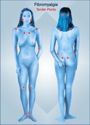 Fibromyalgie, Häufige Punkte