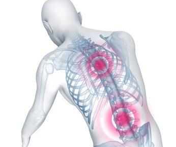 Bandscheibenvorfall im Röntgenbild