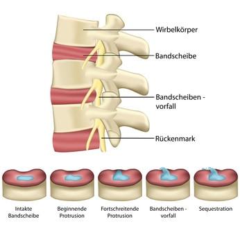 Erklärung eines Bandscheibenvofalls