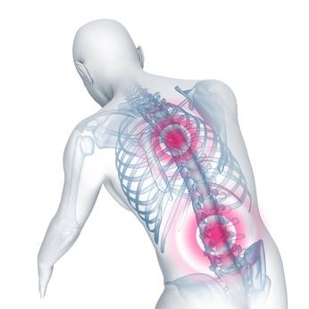 Bandscheibenvorfall Ursachen Symptome Und Behandlung