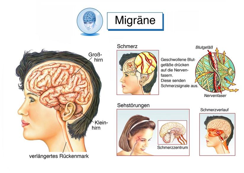 Migräne Kopfschmerzen - Eine Erklärende Grafik
