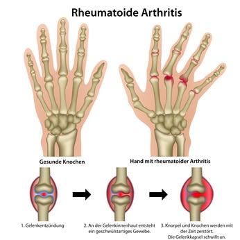 Erklärungsbild der rheumatischen Arthritis