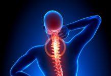 Mann mit Rückenschmerzen (Röntgenaufnahme)