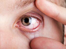 Augenschmerzen