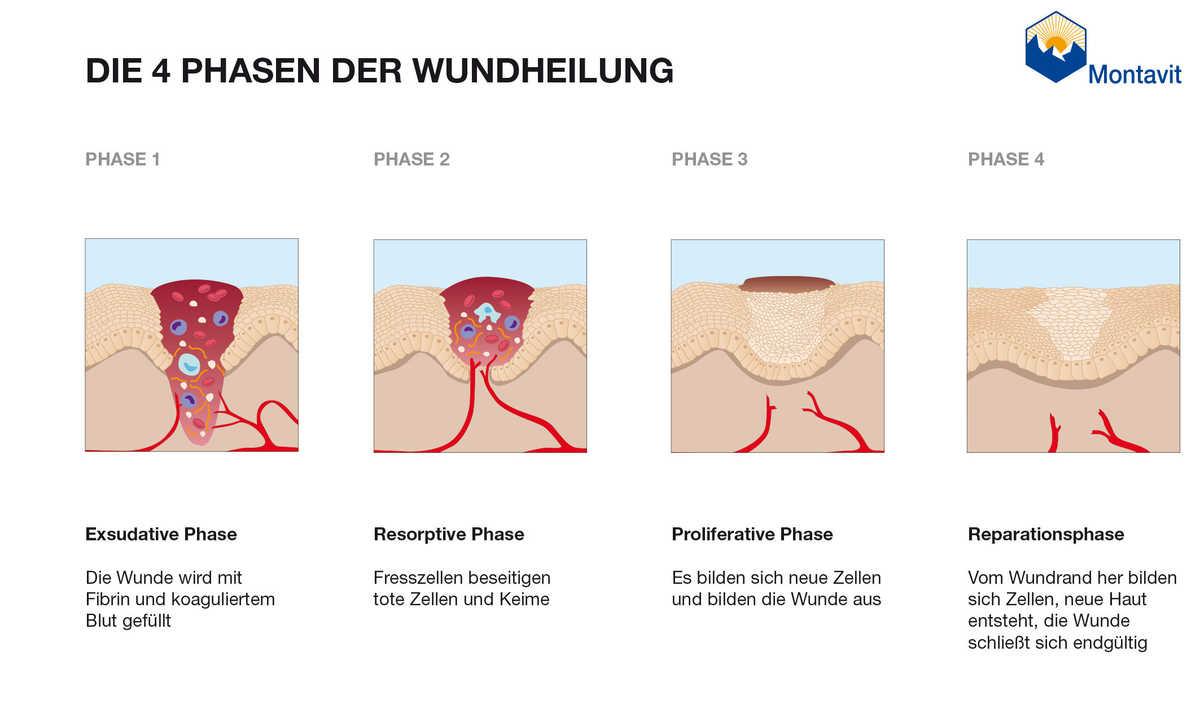 Wundheilung Phasen