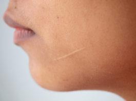 Narbenbehandlung mit Salbe Frau